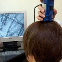 Visita tricologica e analisi del cuoio capelluto