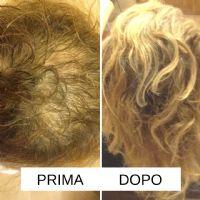 Paziente con alopecia di tipo incognita dopo 2 mesi di terapia