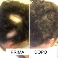 Ulteriore paziente con Alopecia areata dopo 4 mesi di terapia