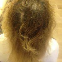 Alopecia incognita prima della terapia