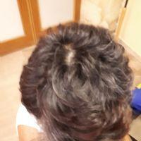 Alopecia areata DOPO la terapia