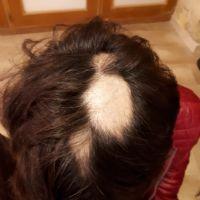 Alopecia areata prima della terapia