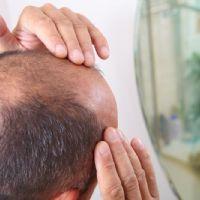 Trattamenti per la ricrescita dei capelli